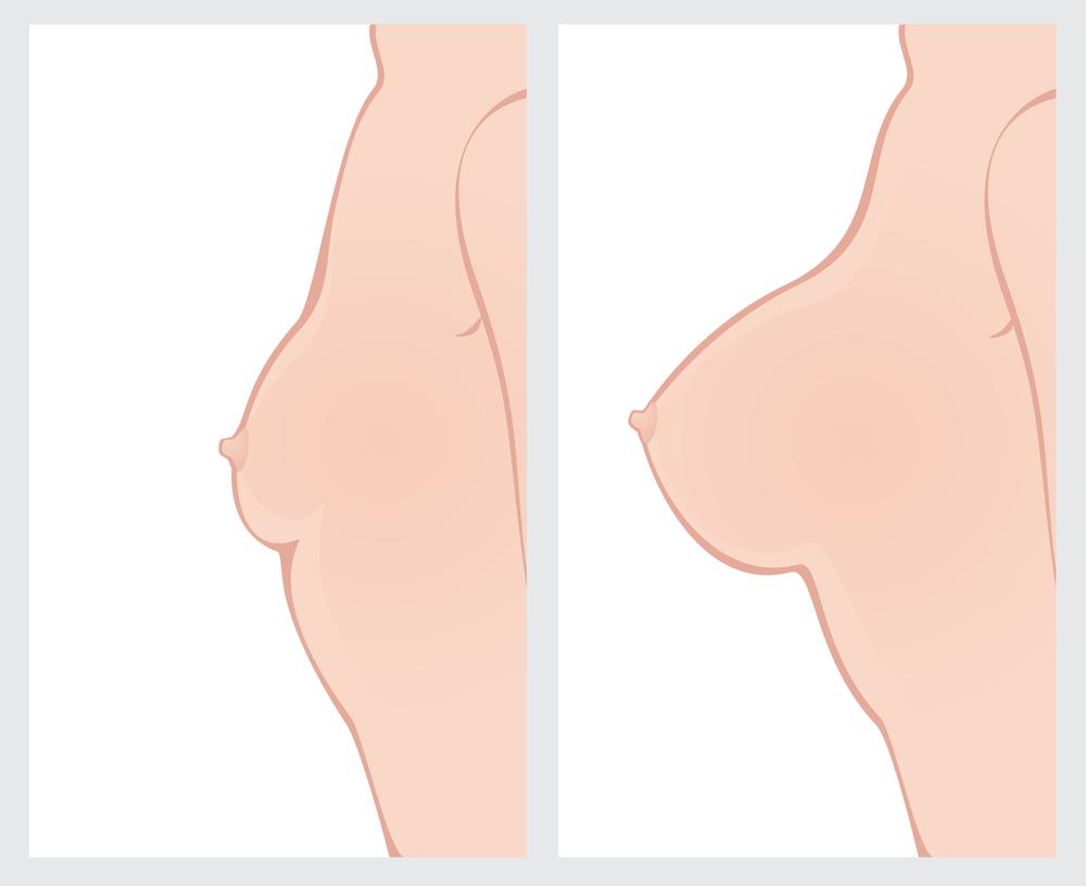 【口コミ・体験談】大胸筋筋膜下法での豊胸でおわん型のバストになりました。