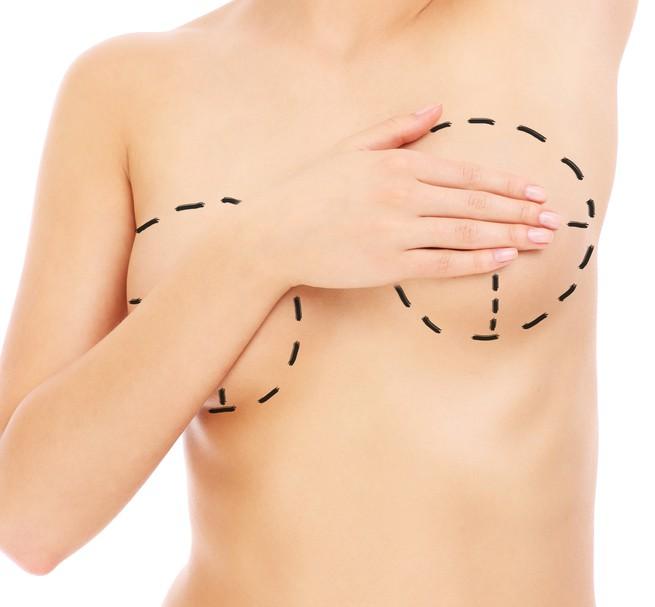 【口コミ・体験談】VASER併用幹細胞豊胸で半永久的にバストアップしました。