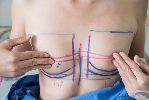 人工乳腺バッグの効果