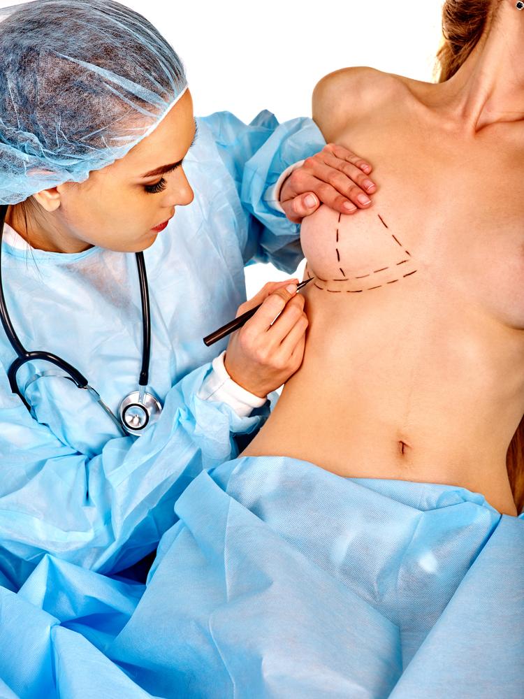 乳腺下法での豊胸のデメリット