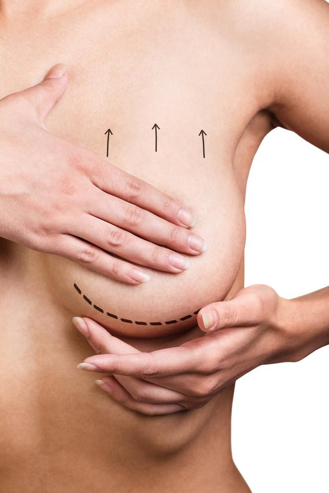 乳頭縮小術の修正は難しい?