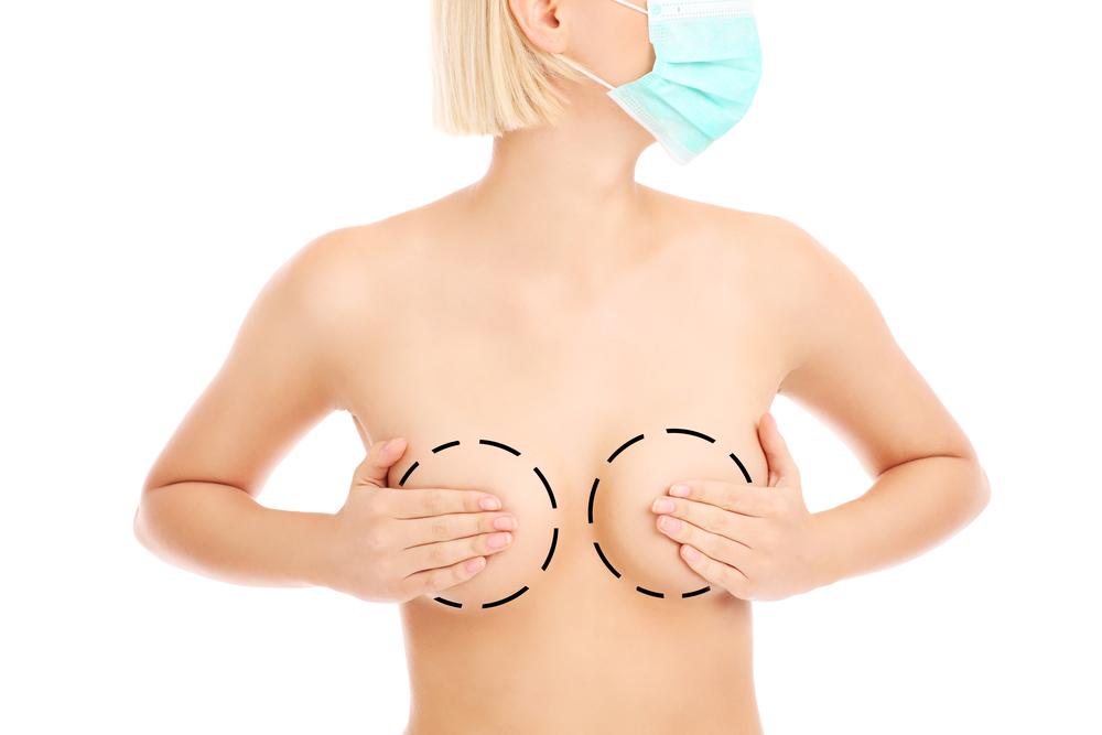 乳房縮小術(リダクション)の修正方法って?